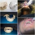 Тимчасова конструкція DIGITAG TAG Dental