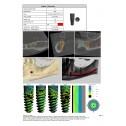 Планування та шаблон TAG Dental